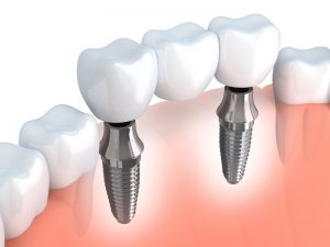 Asheville Dental Implants Services